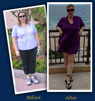 Jessica R. (Tamarac, FL)- Before and After