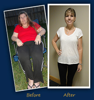 Caryn M. (Port St. Lucie, FL) - Before and After