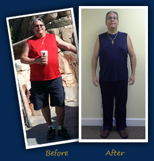David K. (Boynton Beach, FL) - Before and After