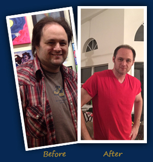 Jason (Boca Raton, FL) - Before and After