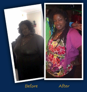 Joanne W., Coral Springs, FL- Before and After