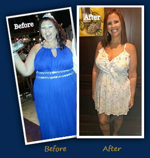 Laurie P. - Before and After