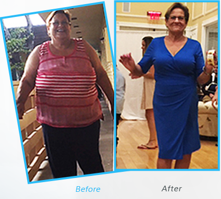 Success Stories or testimonials  of Dr.Shillingford about  Gastric Sleeve Weight Loss