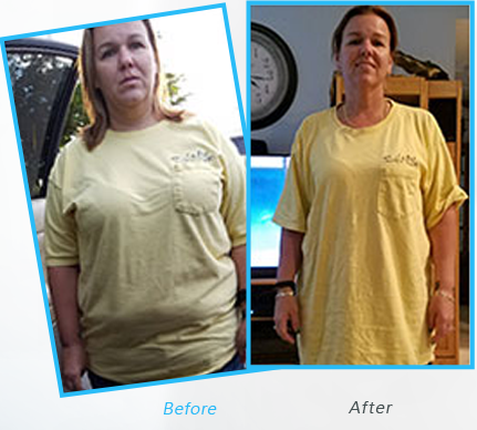 Success Stories or testimonials  of Dr.Shillingford about  Gastric Sleeve
