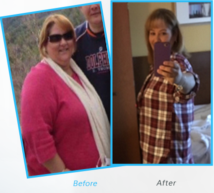 Success Stories or testimonials  of Dr.Shillingford about Gastric Sleeve Surgery