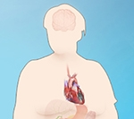 Atrial fibrillation: Weight loss reverses heart condition in obesity sufferers