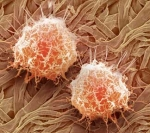 Obesity inhibits key cancer defense mechanism